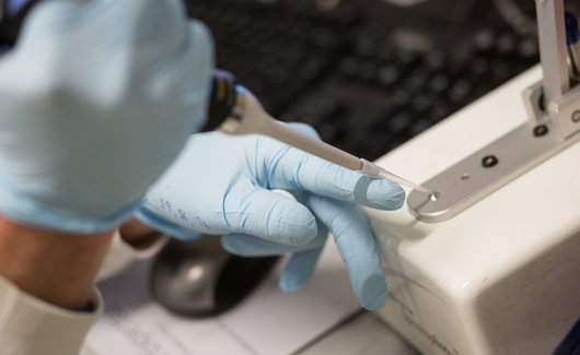 Pipettes used in leukaemia research lab